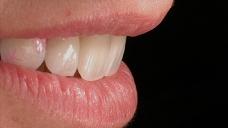 金卡e-max全瓷牙