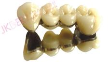 金卡钯金合金烤瓷牙